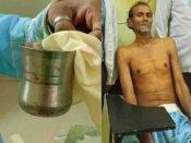કાનપુરનો વિચિત્ર કિસ્સો, દર્દીના પેટમાંથી નીકળ્યો સ્ટીલનો ગ્લાસ