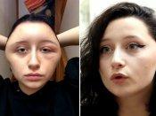 સુંદર દેખાવા યુવતીએ લગાવી હેર ડાય, 'વિજળીના બલ્બ' જેવો બની ગયો ચહેરો