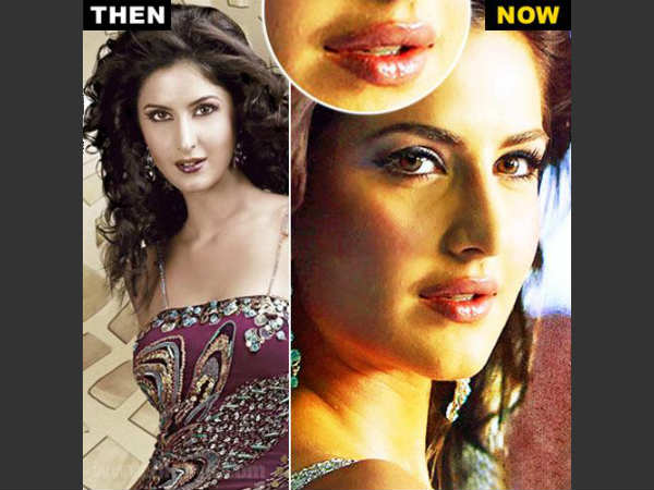 Pictures Of Bollywood Beauties Changed After Surgeries