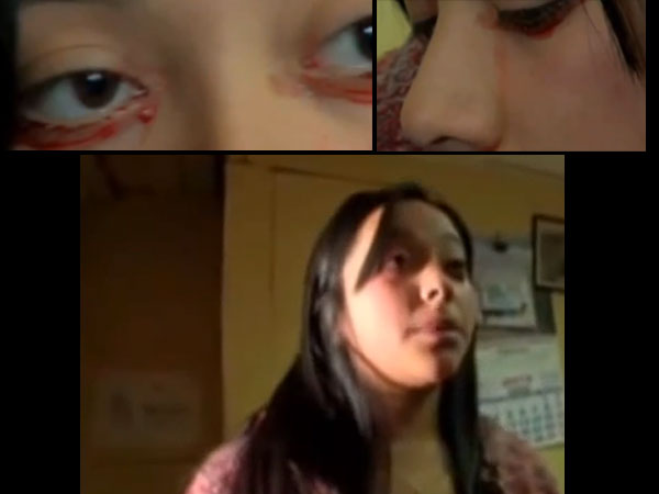 Chile Girl Who Cries Tears Blood
