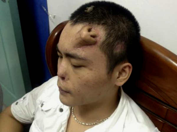 Chinese Doctors Grow New Nose On Man S Forehead