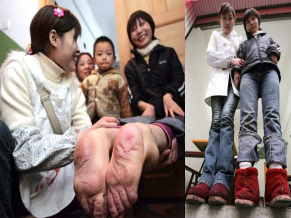Miracle Woman Born With Backwards Feet