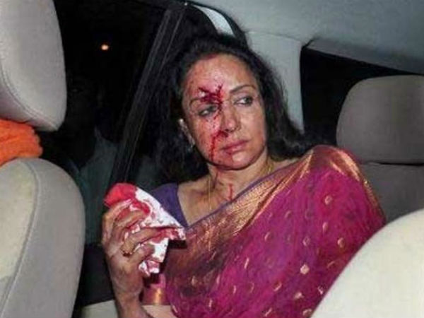 Hema Malini Injured In Road Accident Admitted To Hospital
