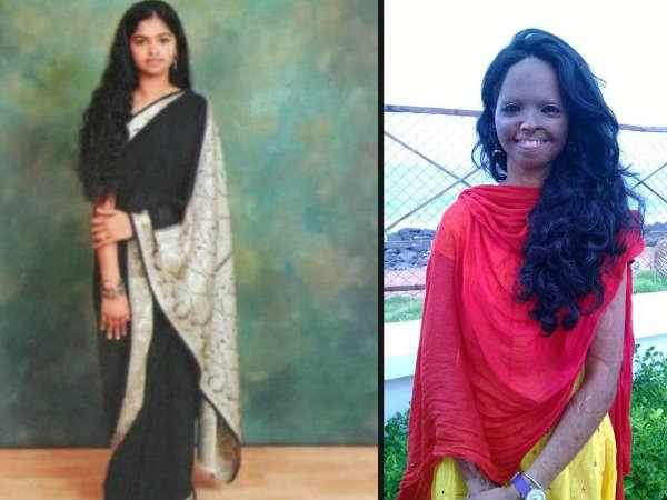 Story Of Acid Attack Victim Laxmi And Activist Alok Dixit