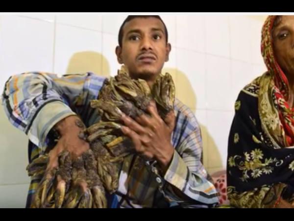 Bangladesh S Tree Man Have Surgery