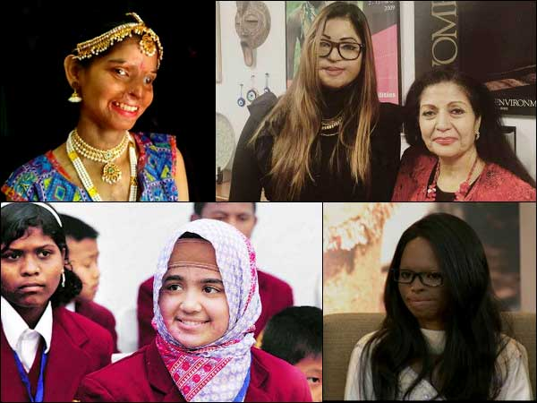 Acid Attack Victims Who Are Amazing 028657 Pg