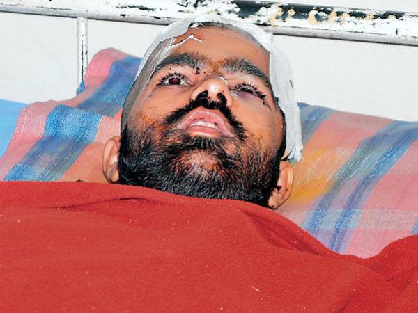Bearing Balls Inside Man Head Mehsana