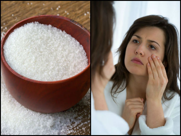 How Sugar Affects Your Skin 029449 Pg1.html