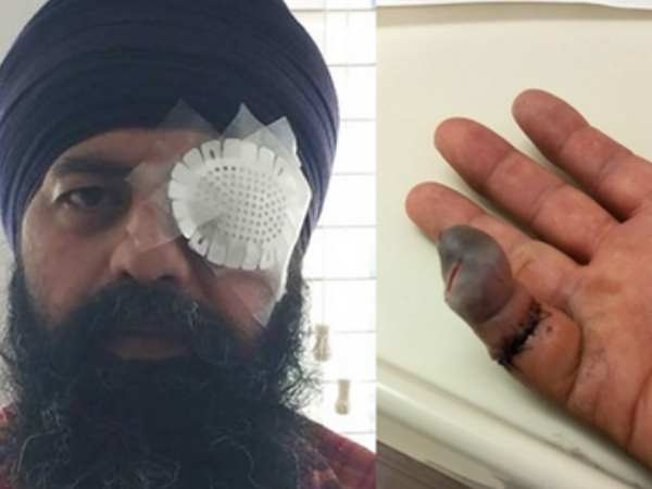 Sikh Man Brutally Beaten And Hair Cut By Knife In Us Hate Crime
