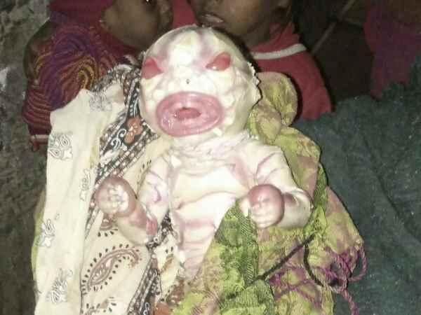 Very Strange Child Born Bihar