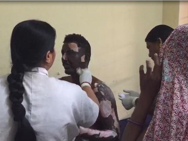 Amreli Gas Cylinder Blast 10 People Same Family Burn Badly