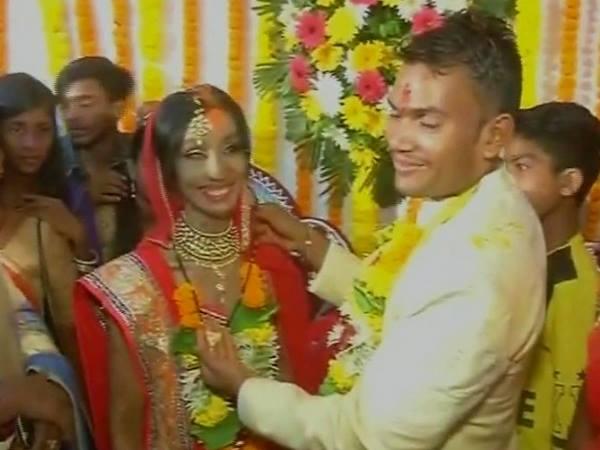 Acid Attack Survivor Finds Love Married