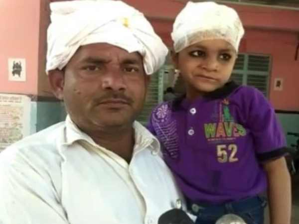 Doctor Left The Needle The Child Head During Operation In Mathura