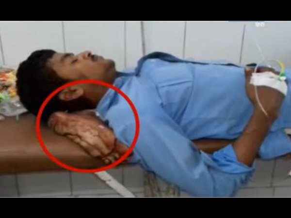 Video Doctor Used Severed Leg As Pillow Jhansi Medical College