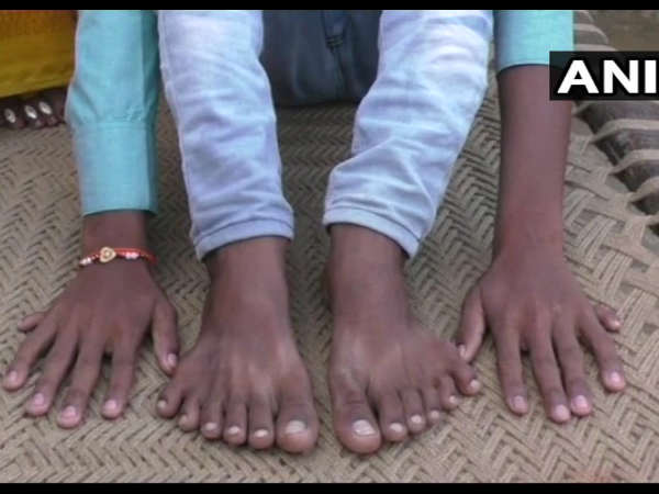 boy born with 6 fingers