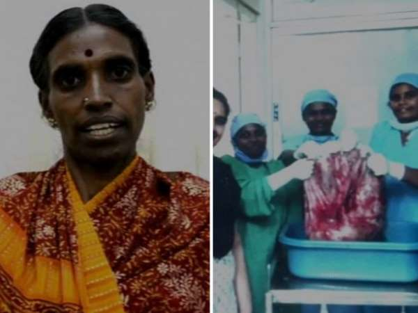 Coimbatore Doctors Remove 33 5 Kg Ovarian Tumor Eye On World Record