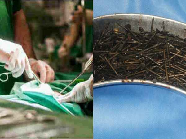 Ethiopia Doctors Remove 122 Nails From Man Stomach