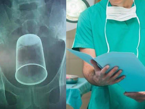 Faridabad Steel Glass Found Stomach Patient After Xray