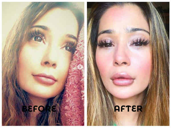 Lip Surgery Gone Wrong Sara Khan Gets Trolled On Social Media