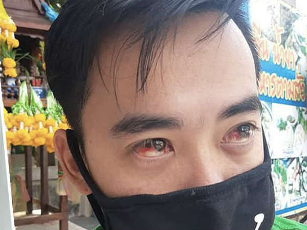Bangkok Battles With Smog People Are Experiencing Bleeding Noses Red Eyes