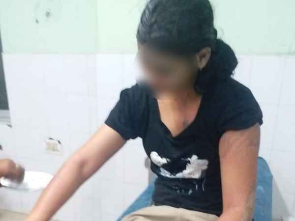 Acid Attack On Female Constable In Mathura