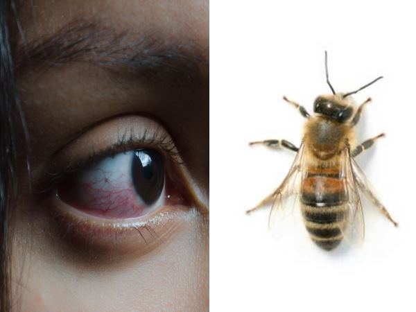 Three Live Bees Living In Woman S Eye Are Extracted By Doctors