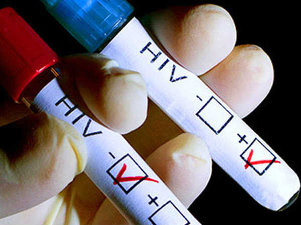 Pakistan About 500 People Are Hiv Positive