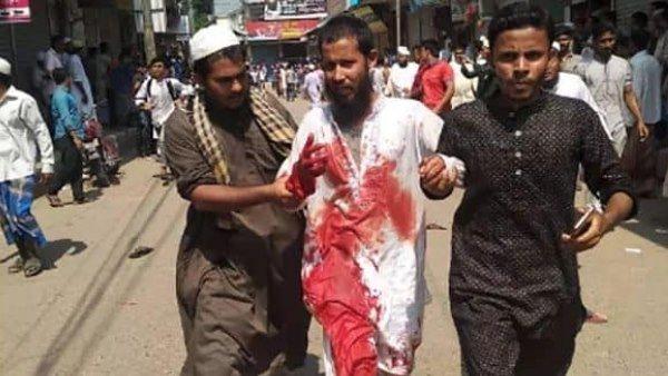 ફેસબૂક પોસ્ટને કારણે બાંગ્લાદેશમાં હિંસા ભડકી, 4 લોકોની મૌત 50 ઘાયલ