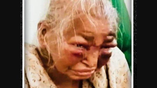 85 વર્ષીય મહિલાના મોત બાદ TMC પર હુમલાવર થયુ BJP