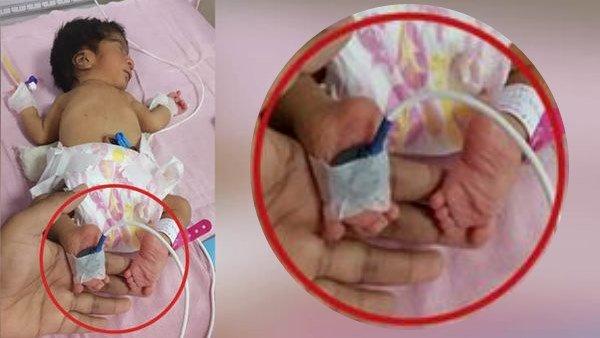 ઉલટા પગવાળી દીકરી જન્મતા લાવારિસ છોડીને જતા રહ્યા માતાપિતા, 36 કલાક પછી પાછા આવ્યા