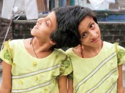 Sc Bihar Govt Take Care Conjoined Twins Saba And Farah