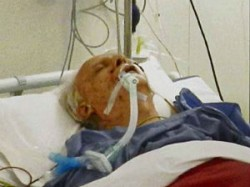 Vc Shukla In Critical Condition But Stable Doctors