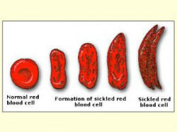 Gujarat First In Formation Sickle Cell Anemia Society