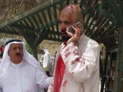 Terrorist Attack France Attacker Beheaded Man Raised Islamist Flag