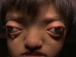 Bihar Girl With Crouzon Syndrome Disease
