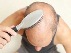 Natural Tips Prevent Male Pattern Baldness 029811 Pg