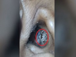 Terrifying Moment When Live Spider Crawled Womans Ear Watch Viideo