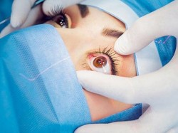 Worms Pulled Of Woman S Eye Oregon America First Case In Human