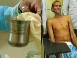 Kanpur Rama Hospital Doctor Operated Patient Who Has Glass H