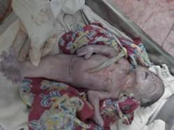 Siren Takes Birth Saharanpur Hospital