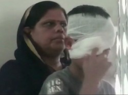 Class Two Student Was Hit By A Teacher In Madhya Pradesh Damoh