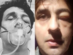Singer Sonu Nigam Shares His Picture From Icu Hospital