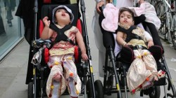 Doctors Successfully Separated Conjoined Head Of Twins