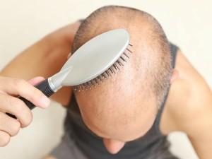 Natural Tips Prevent Male Pattern Baldness 029811 Pg1.html